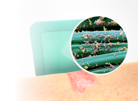 illustration showing a wound, Sorbact Superabsorbent and a microscopic image with microbes on a Sorbact surface